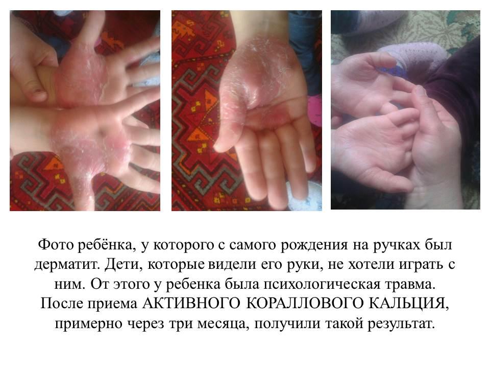 Эффект у ребёнка после приема Активного Кораллового кальция